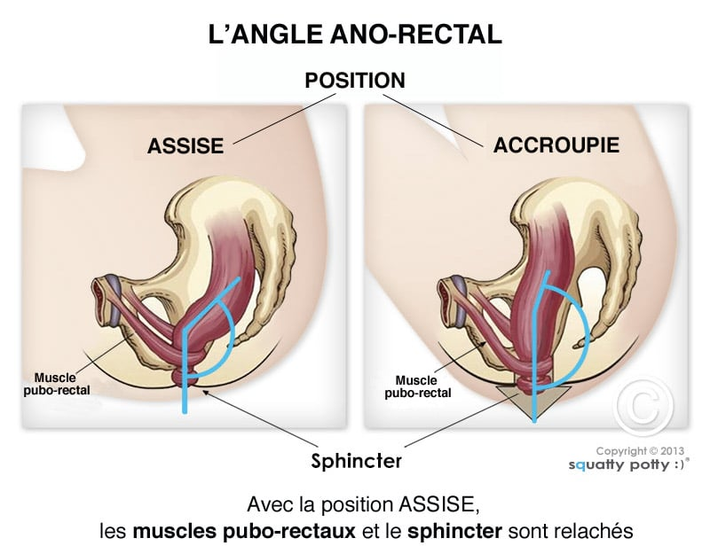 how to say constipation in french